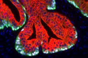 Anti-PSA (human) antibody clone HAM18