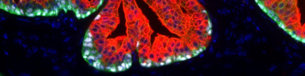 adelecarcinoma de próstata gleason acinar 3 4 5