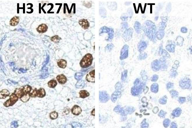 Histon3 H3 K27M Mutation