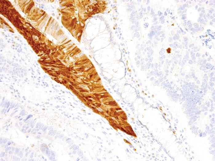 Antikörper Anti-Arginase-1 (ARG1) (Hu) aus Maus (IHC400) - unkonj.