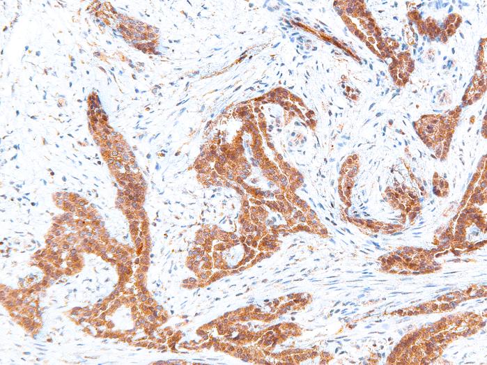 Antibody Anti-BRAF V600E (Hu) from Mouse (IHC600) - unconj.