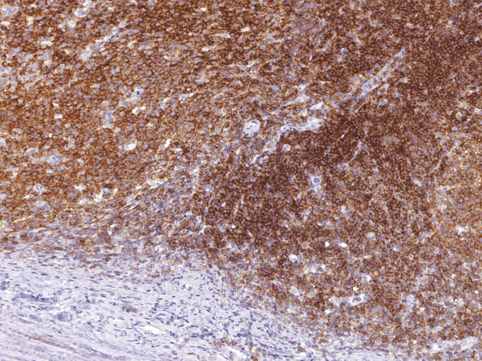 Antikörper Anti-CD45R (B220) (Hu) aus Maus (IHC536) - unkonj.