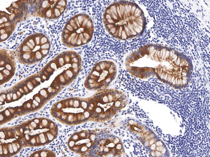 Antikörper Anti-CEA (Carcinoembryonic Antigen) (Hu) aus Maus (IHC543) - unkonj.