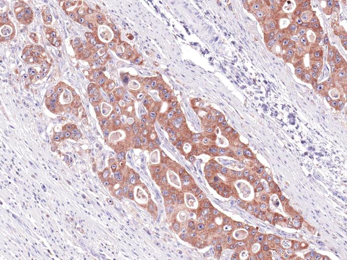 Antikörper Anti-COX-2 (PTGS2) (Hu) aus Maus (IHC550) - unkonj.