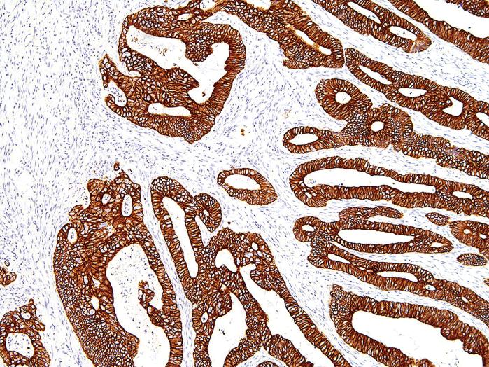 Antikörper Anti-Cytokeratin 19 (KRT19) (Hu) aus Maus (IHC019) - unkonj.
