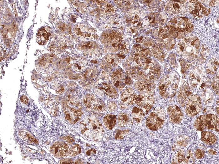 Antikörper Anti-Follicle Stimulating Hormone (FSH) (Hu) aus Maus (IHC580) - unkonj.
