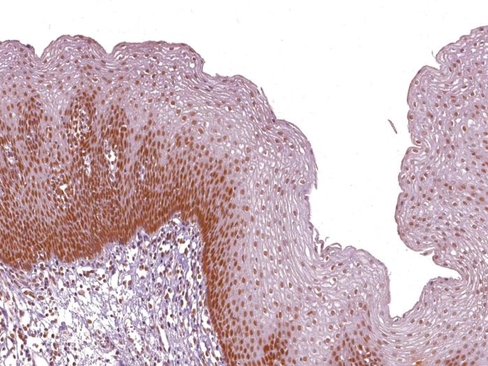 Antikörper Anti-DNA mismatch repair protein Msh2 (MSH2) (Hu) aus Maus (IHC410) - unkonj.