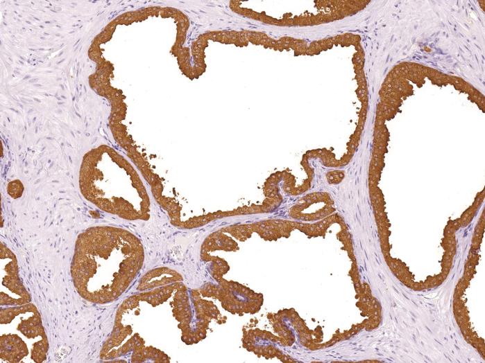 Antikörper Anti-Prosaposin (PSAP) (Hu) aus Maus (IHC655) - unkonj.