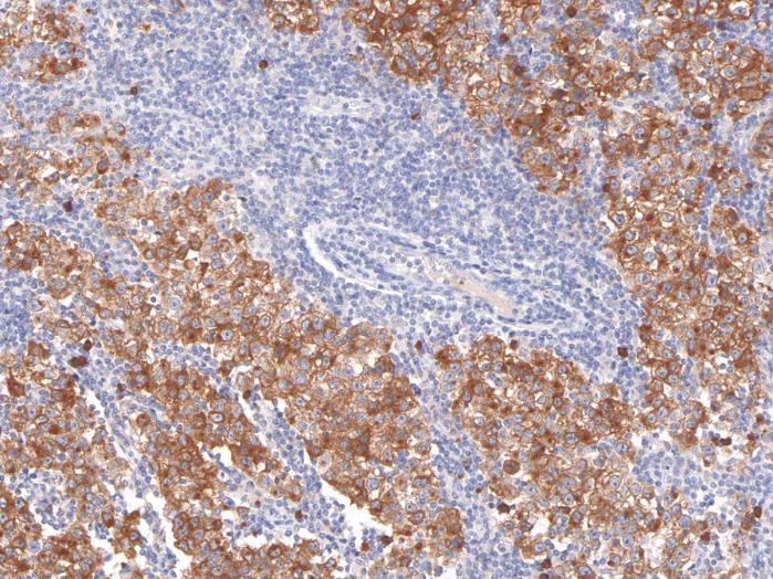 Antikörper Anti-Podoplanin (PDPN) (Hu) aus Maus (IHC650) - unkonj.