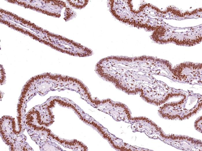 Antikörper Anti-Progesterone Receptor (PGR) (Hu) aus Maus (IHC651) - unkonj.