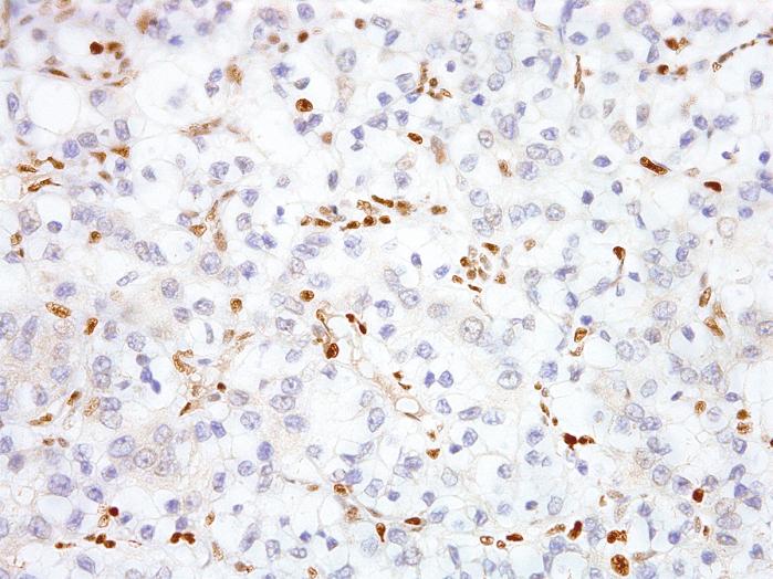 Antikörper Anti-Transcription factor E3 (TFE3) (Hu) aus Maus (IHC672) - unkonj.