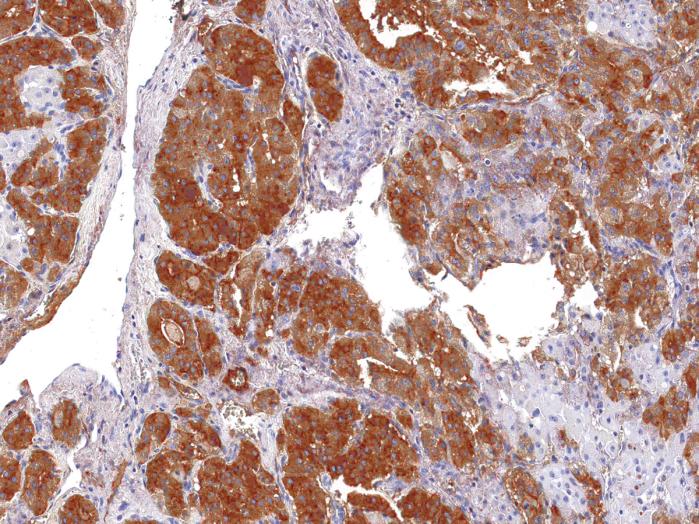 Antikörper Anti-Thyroglobulin (TG) (Hu) aus Maus (IHC674) - unkonj.