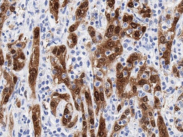 p16_Cervical-adenocarcinoma