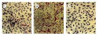 00982_Abb3_Thyrocyte-culture-before-and-after-elimination-of-fibroblasts-with-anti-CD90-DIA-100