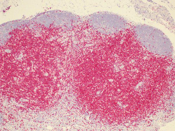clone-HH3E-stains-mouse-lymph-nodes