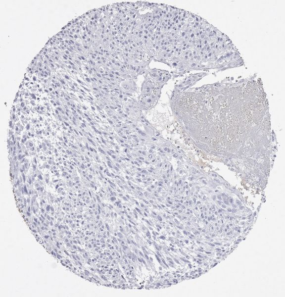 Thyroglobulin negative anaplastic thyroid carcinoma.