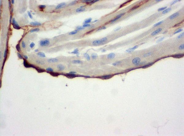 SZ31_endocardium