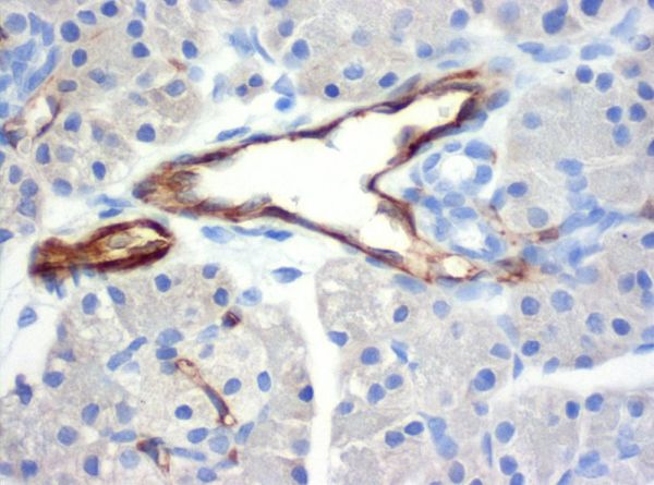 SZ31_pancreas