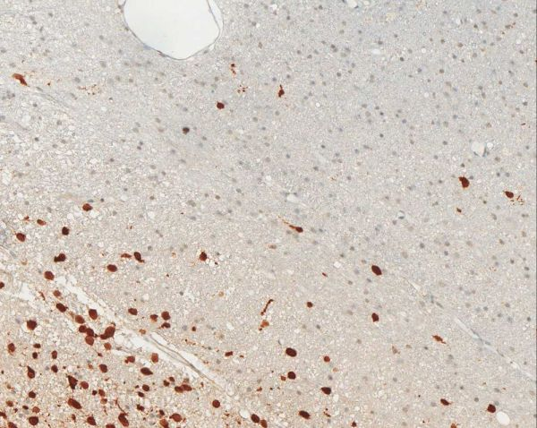 IDH1-R132H-infiltrating-glioma-cells
