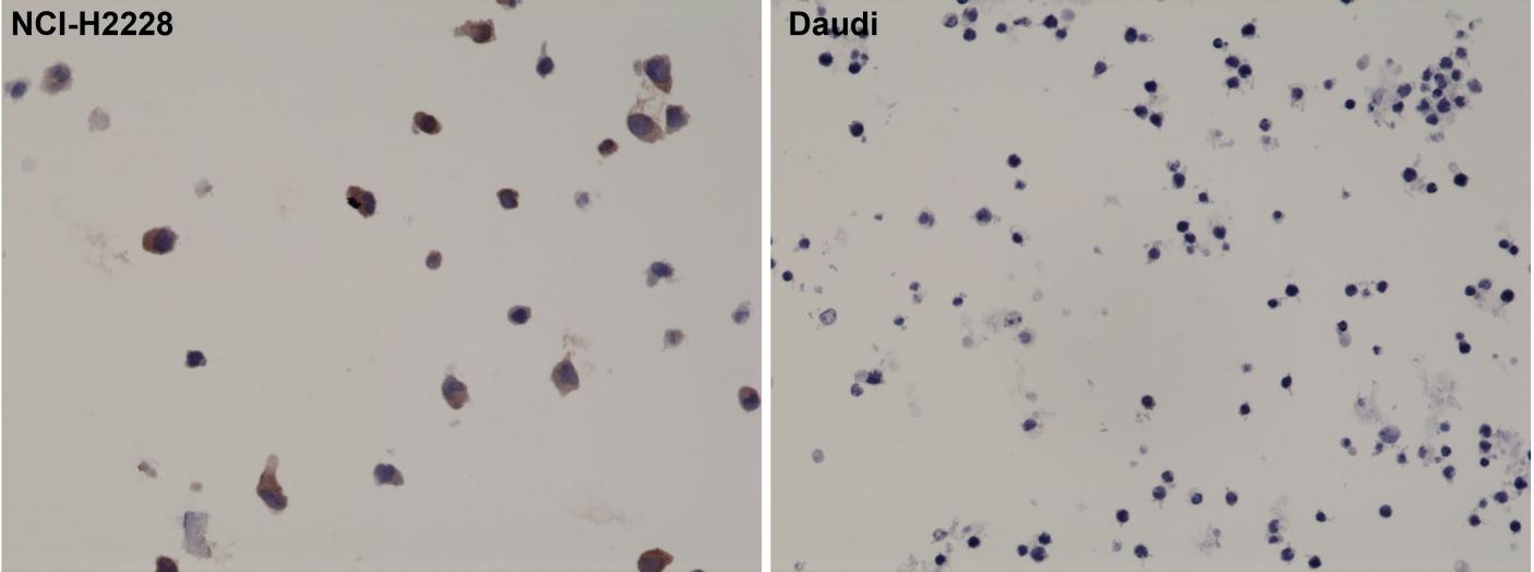 Antikörper Anti-ALK aus Kaninchen (RM361) - unkonj.