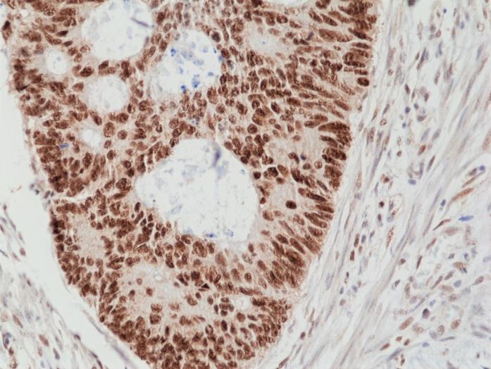 Antikörper Anti-DNA mismatch repair protein Msh2 (MSH2) aus Kaninchen (RM375) - unkonj.