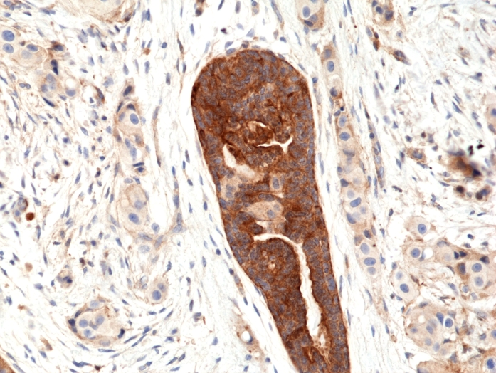 Antikörper Anti-Vascular Endothelial cell Growth Factor (VEGF) aus Kaninchen (RM391) - unkonj.