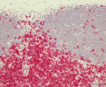 Lymp-node-B_CD3
