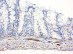 The monoclonal antibody clone SZ31 (DIA-310) reacts specifically with endothelial cells in vessels and capillaries of mouse colon (FFPE tissue). Der monoklonale Antikörper Klon SZ31 (DIA-310) reagiert spezifisch mit Endothelzellen in Gefäßen und Kapillaren des Dickdarm aus der Maus (FFPE Gewebe).