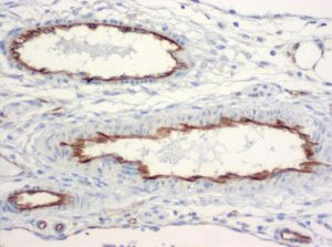 The monoclonal antibody clone SZ31 (DIA-310) reacts specifically with endothelial cells in vessels and capillaries of mesenteric vessels from mice (FFPE tissue). Der monoklonale Antikörper Klon SZ31 (DIA-310) reagiert spezifisch mit Endothelzellen in Gefäßen und Kapillaren in mesenterialen Gefäße der Maus (FFPE Gewebe).