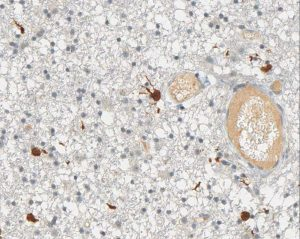 Immunohistochemical staining (IHC) with anti-IDH1 R132H Antibody (clone H09) - dianova