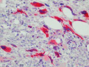 在纤维化阶段,在PMF病例的巨核细胞中突变的CALR蛋白的选择性染色,其中Sanger测序检测到CALR突变。
