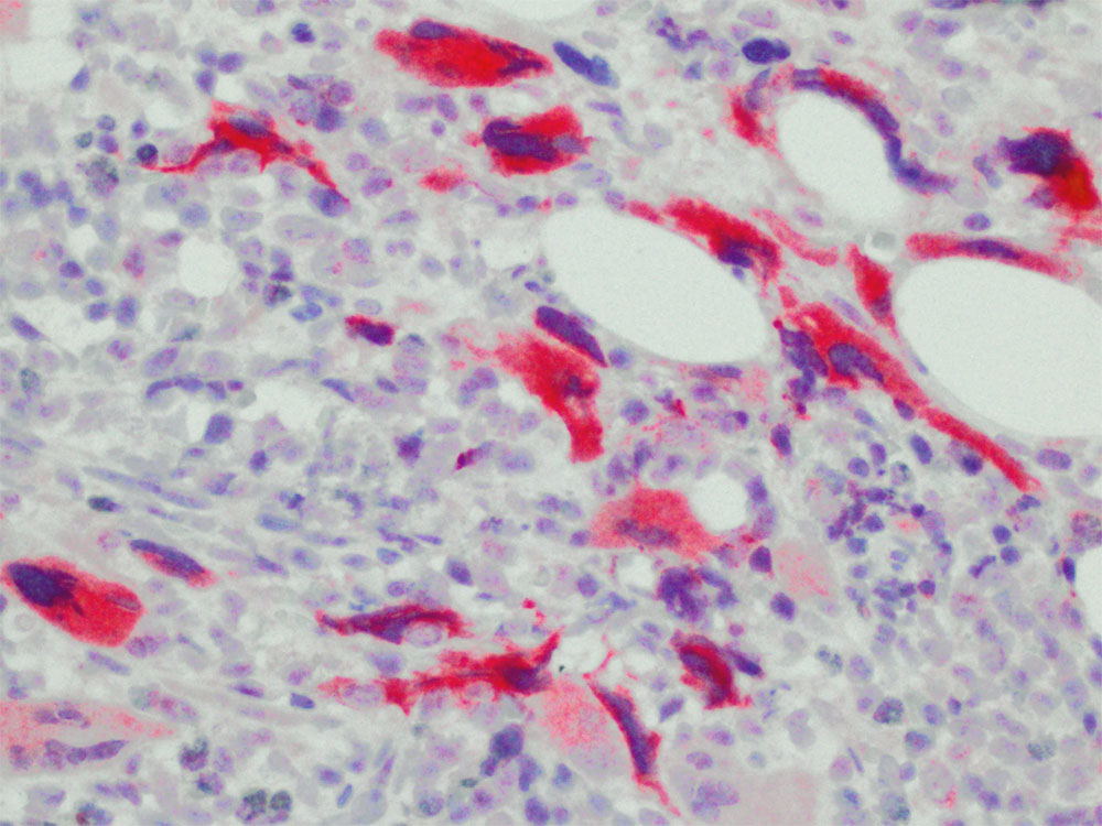 Selective staining of mutated CALR protein in megakaryocytes of a PMF case, in fibrotic phase in which Sanger sequencing detected a CALR mutation.