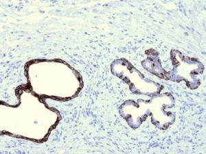 FFPE prostate bassal cells stained with Optibodies Anti-CK5.