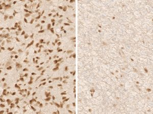 Immunohistochemical staining (IHC) with anti-ATRX Antibody (clone AX1) - dianova