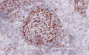 Immunohistochemical staining (IHC) with anti-TIGIT Antibody (clone TG1) - dianova