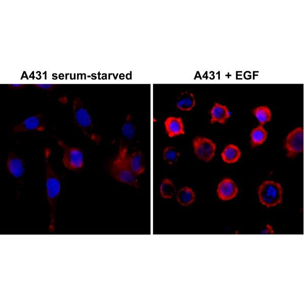 Immunocytochemical staining (ICC) with anti-Phosphotyrosin Antibody (clone RM111) - RevMAb Biosciences