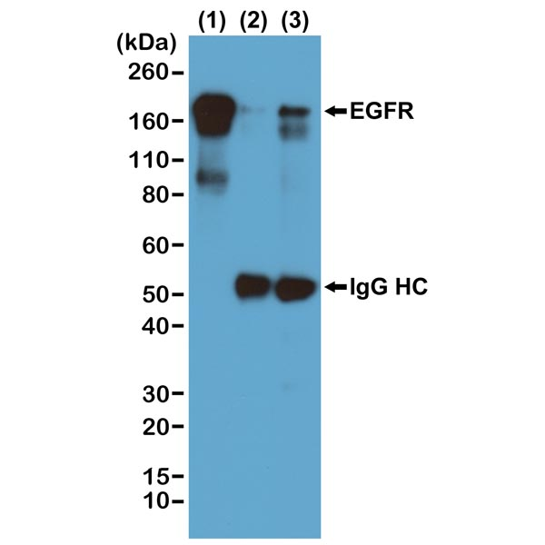 Western blot detection (WB) with anti-Phosphotyrosin Antibody (clone RM111) - RevMAb Biosciences