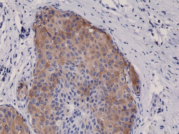 Immunohistochemical staining (IHC) with anti-phospho-Acetyl-CoA Carboxylase (Ser79) Antibody (clone RM270) - RevMAb Biosciences
