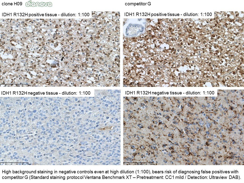 Clone H09 is the goldstandard for anti-IDH1 R132H IHC, which is recommended by the CNS WHO classification.