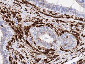 Dia-p16-OD anti-p16 antibody on human FFPE tissue sample