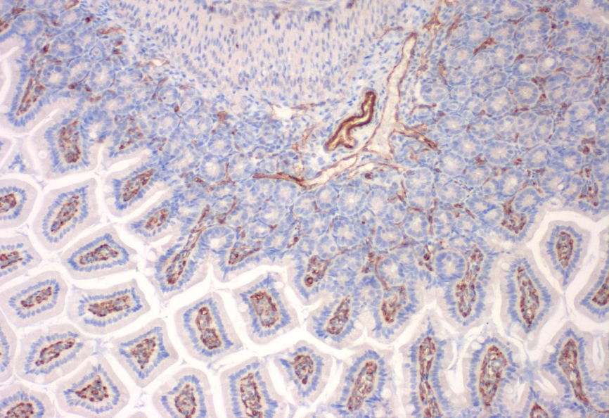 IHC with anti-CD31 (PECAM-1) Antibody (clone SZ31) - dianova