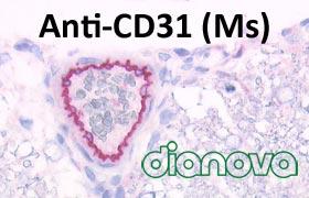 DIA-310 anti-CD31 Maus für FFPE-Gewebe